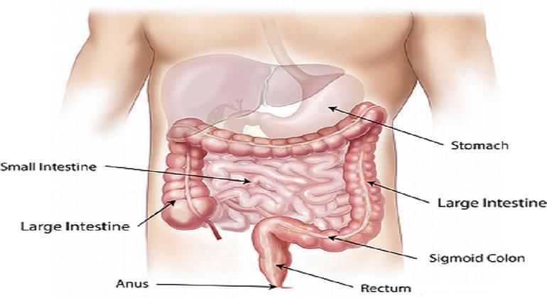 colorectal cancer diagnosis ,
