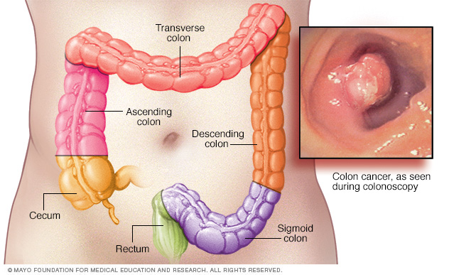 colorectal cancer human anatomy